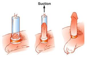Làm to và kéo dài dương vật bằng máy tập Penis